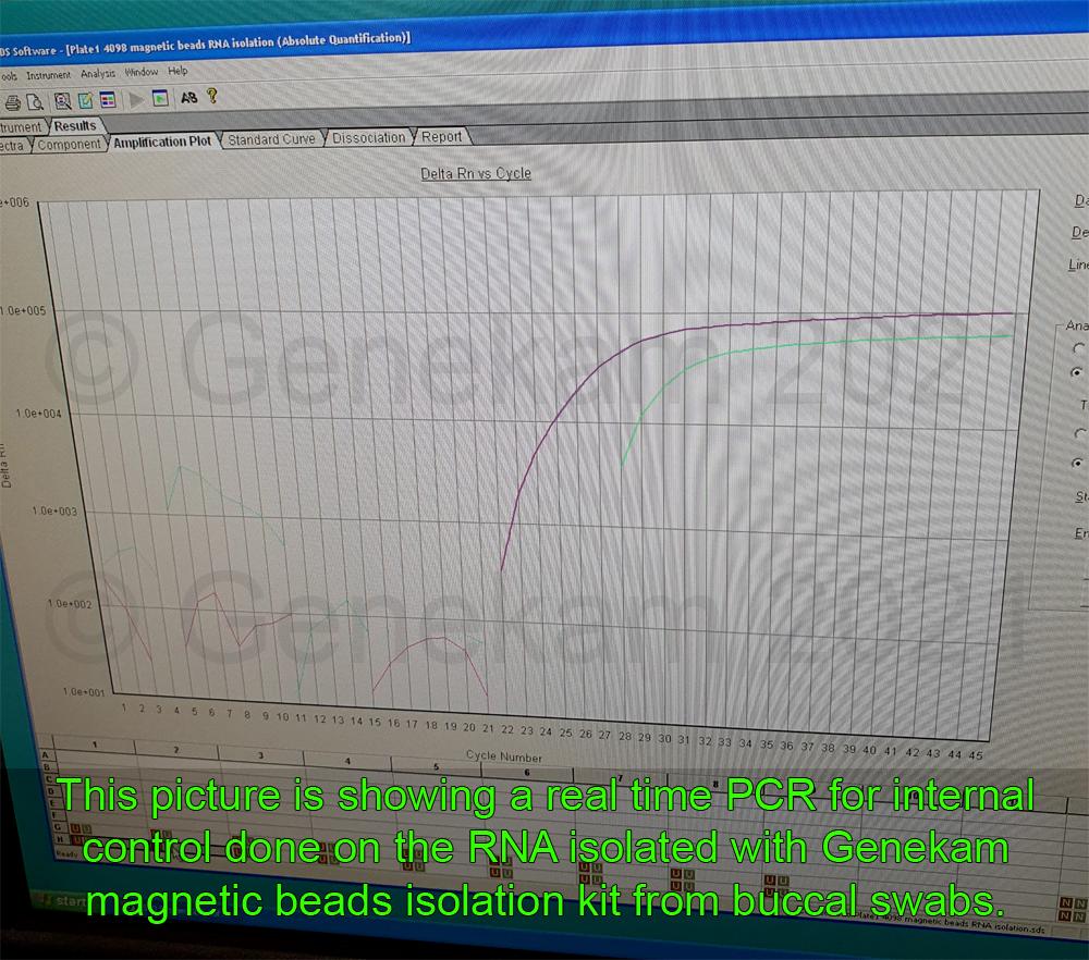 Genekam_RNA-magnetic-isolation_3