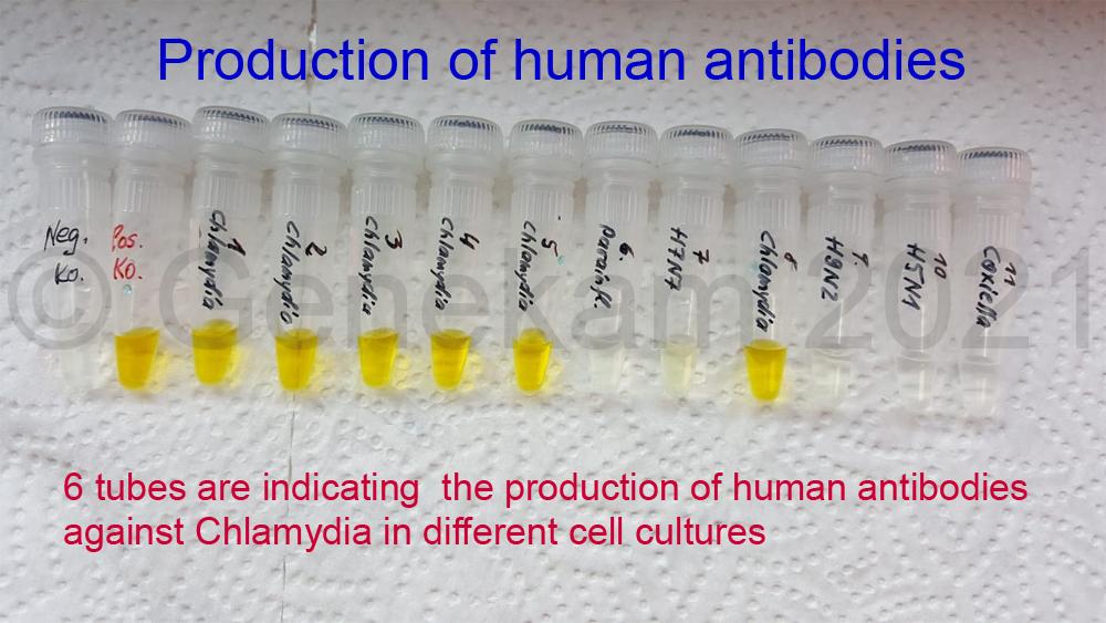 Genekam_human_antibodies_production