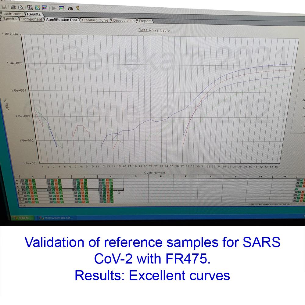 Realtime_PCR_test_SARS-CoV-2