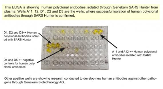 Human Polyclonal Antibodies SARS Hunter